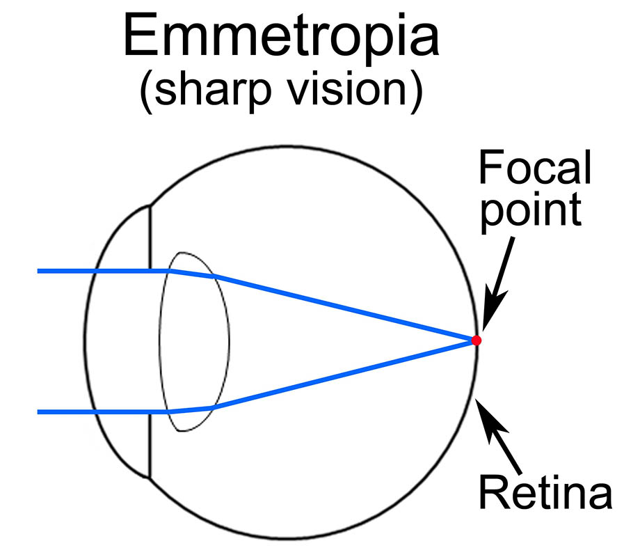 About the eye blooms opticians your eyes work by focussing light rays from an image youre looking at onto your focal point in the back of your eye retina if this focus isnt right ccuart Choice Image